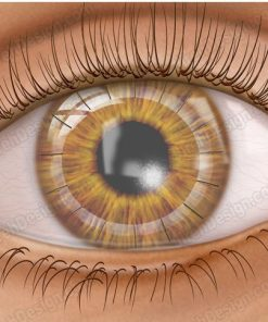 Corneal transplant penetrating keratoplasty and sutures in a post-op surgical illustration.