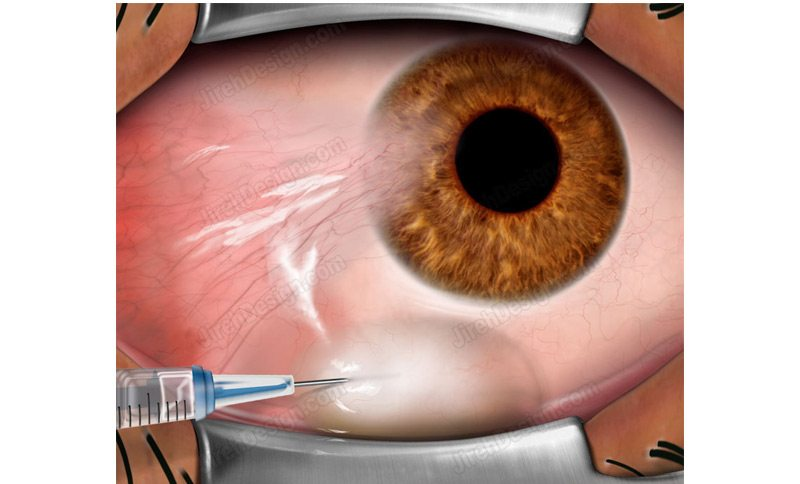 Pterygium removal is done in several steps.