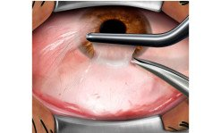 Creating a conjunctival graft in pterygium removal surgery.