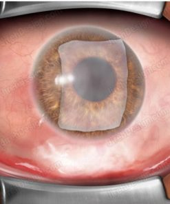 The conjunctival graft lying on the cornea.