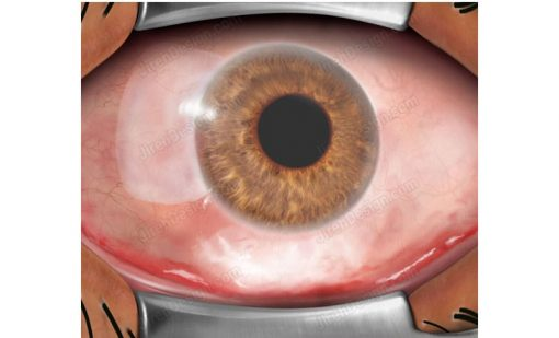 Conjunctival graft in place of the area of pterygium removal.