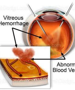 Pars plana vitrectomy for vitreous hemorrhage in diabetes