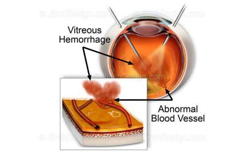 Pars plana vitrectomy for vitreous hemorrhage in diabetes suvr0023