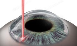 Laser limbal relaxing incisions (LRI)