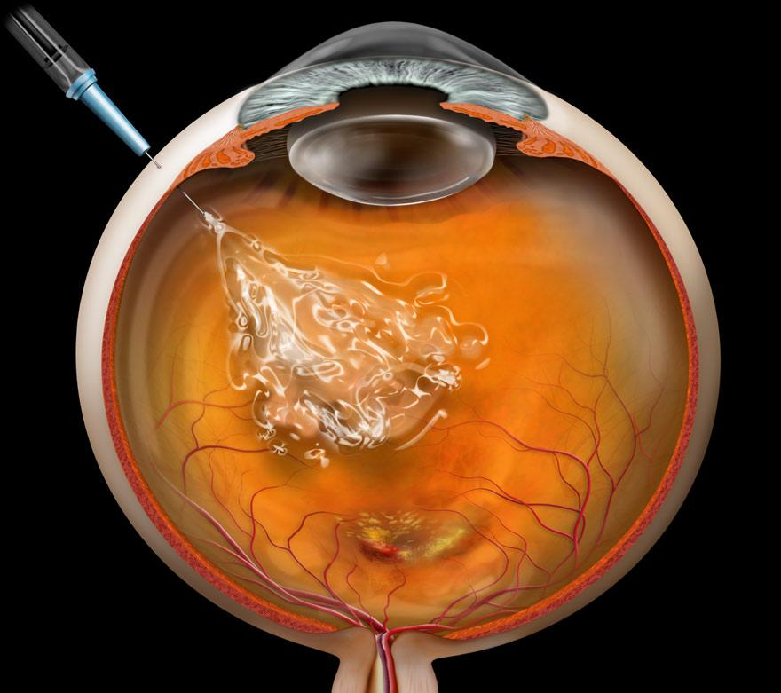 Anti-VEGF eye injection interactive
