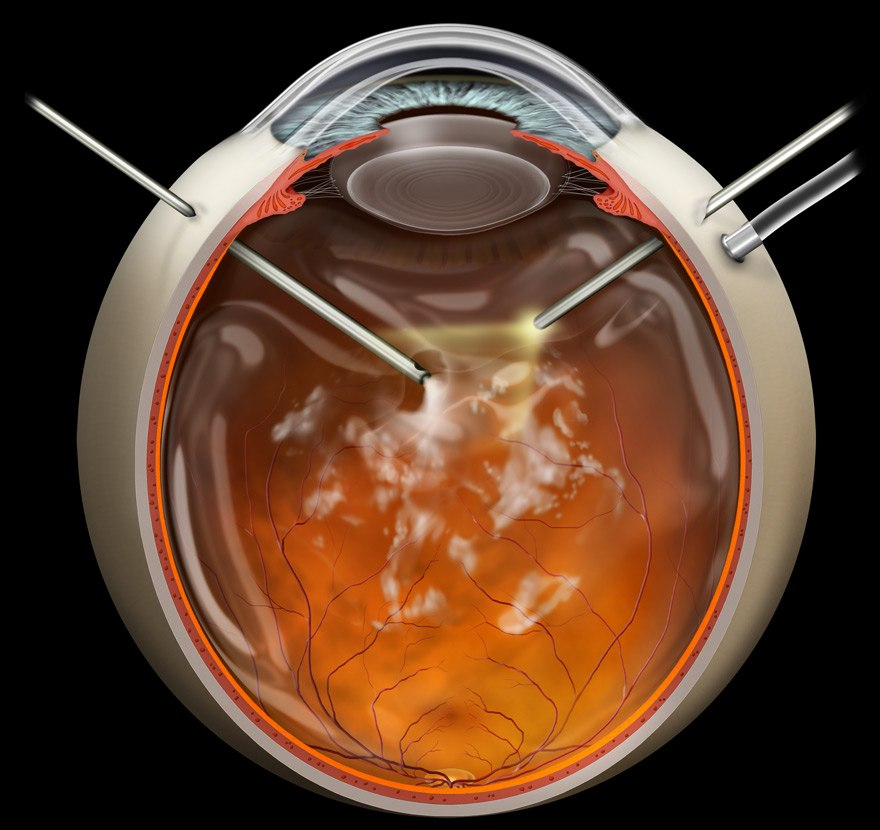 Pars plana vitrectomy interactive