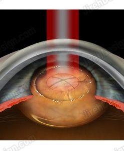 Femtosecond laser cataract surgery lens emulsification