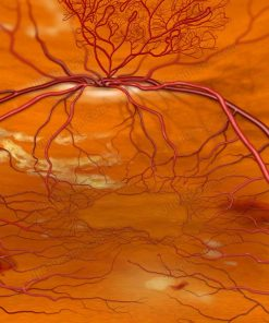 NVD with diabetic retinopathy - co0098