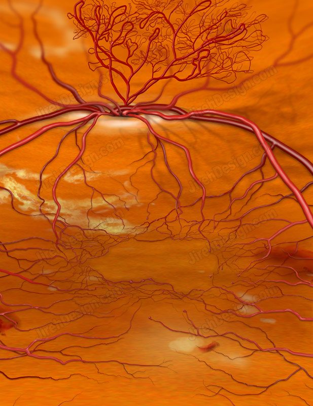 NVD with diabetic retinopathy – co0098