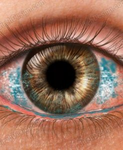Dry eye with lissamine stain - co0170