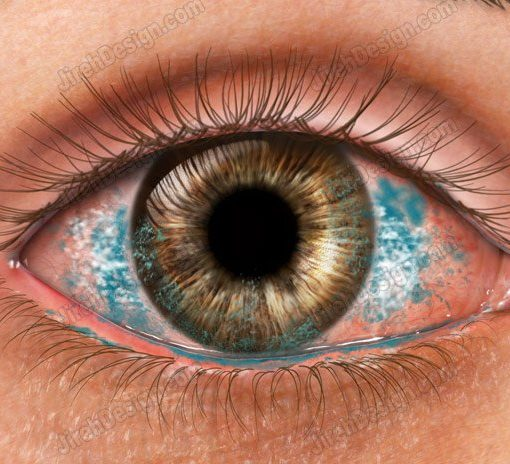 Dry eye with lissamine stain