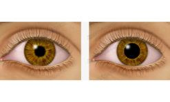 Pupil dilation - ec0010
