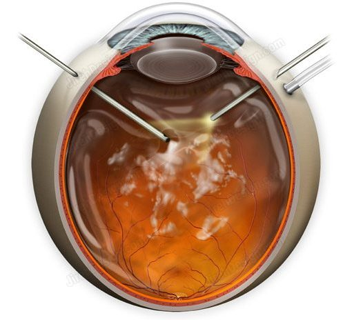 Pars plana vitrectomy for floaters – SUVR0020a