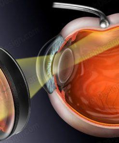 Scleral depression retinal exam suvr0070