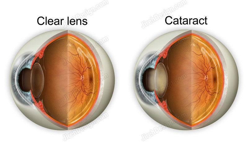 A clear lens compared to a cataract in an eye