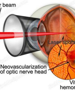Argon laser photocoagulation for diabetic retinopathy - suvr0006