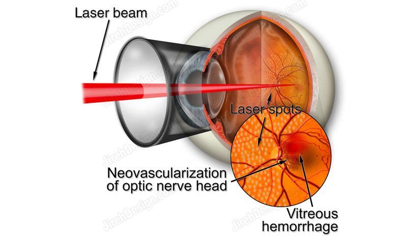 Argon laser photocoagulation for diabetic retinopathy – suvr0006