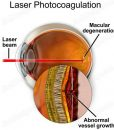 Laser photocoagulation for wet AMD - suvr0010