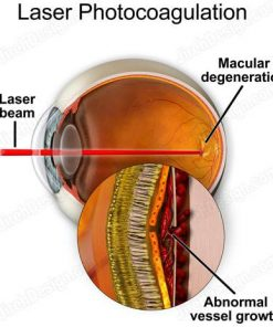 Laser photocoagulation for wet AMD - suvr0010