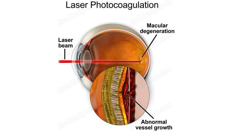 Laser photocoagulation for wet AMD – suvr0010