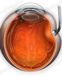 Scleral depression for peripheral retina examination - SUVR0069