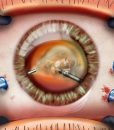 Pars plana vitrectomy, surgeon's view - image #suvr0022a