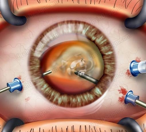 Pars plana vitrectomy, surgeon's view – image #suvr0022a