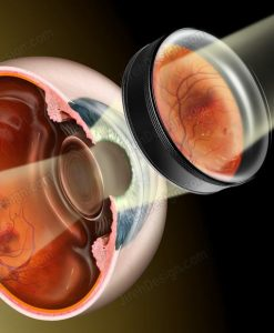 Indirect ophthalmoscopy on diabetic retinopathy #CO3030