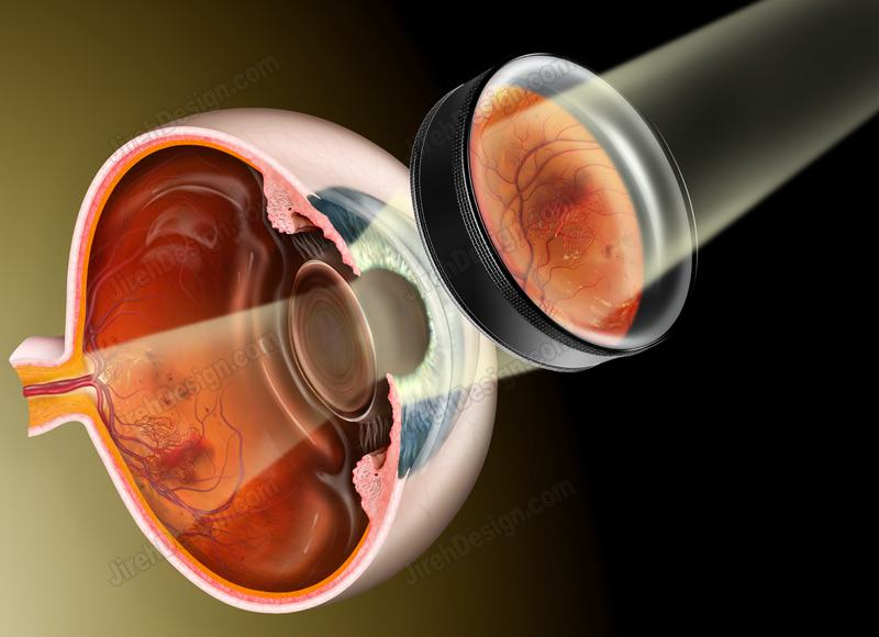 Indirect ophthalmoscopy #CO3030