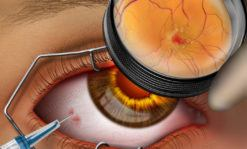 Intravitreal eye injection - #SUVR0025