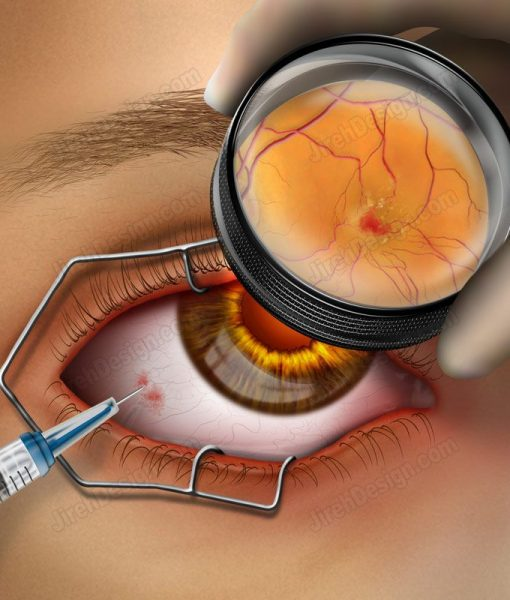 Intravitreal injection – #SUVR0025