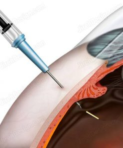 Intravitreal implant illustration - suvr0085