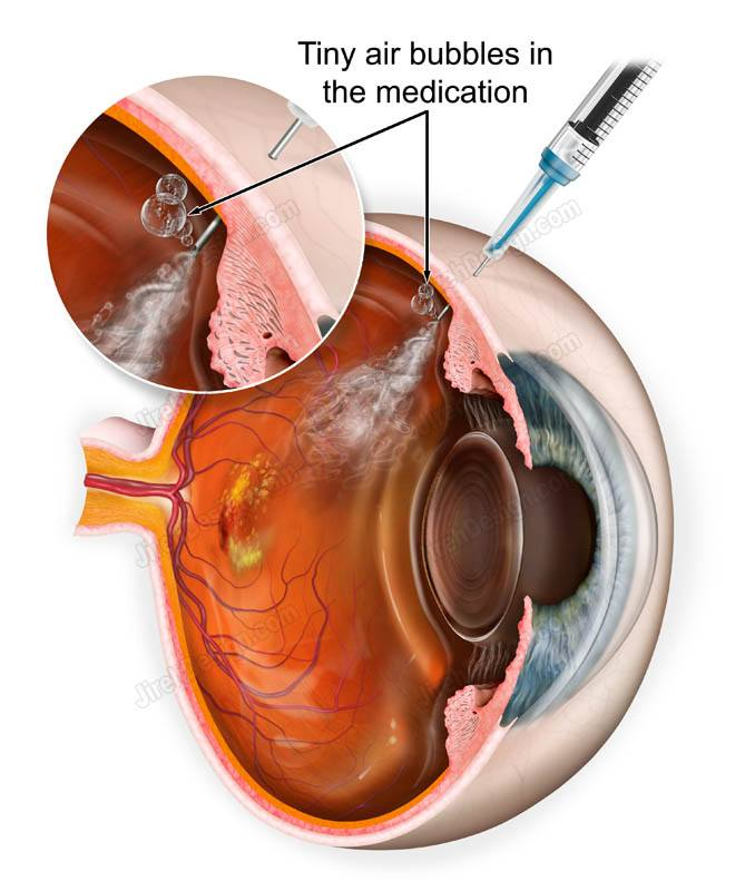 Anti-VEGF eye injection depicting the air bubbles released with the medication - #SUVR0089