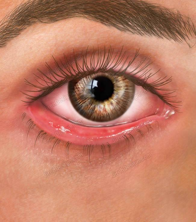 Ectropion | lower eyelid turning outward - #CO3060