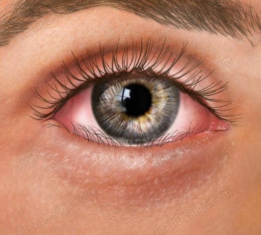 Entropion – inward turning of the lower eyelid – co3065