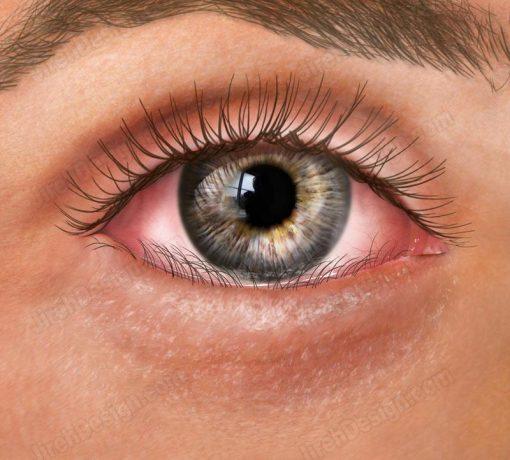 Entropion – inward turning of the lower eyelid – co3065