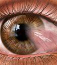 Pterygium stock eye image - #co3095