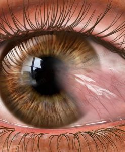 Pterygium stock eye image - #co3095
