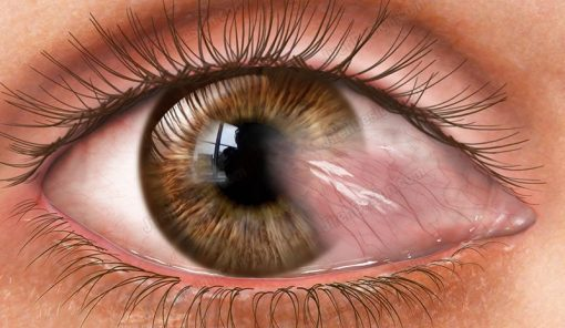 Pterygium stock eye image – #co3095