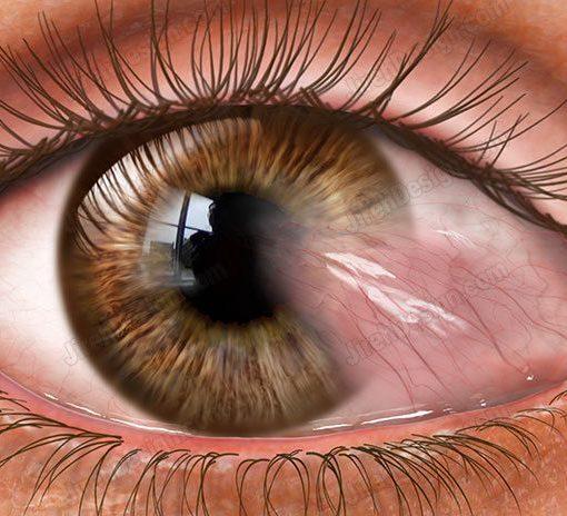 Pterygium stock eye image – #co3095