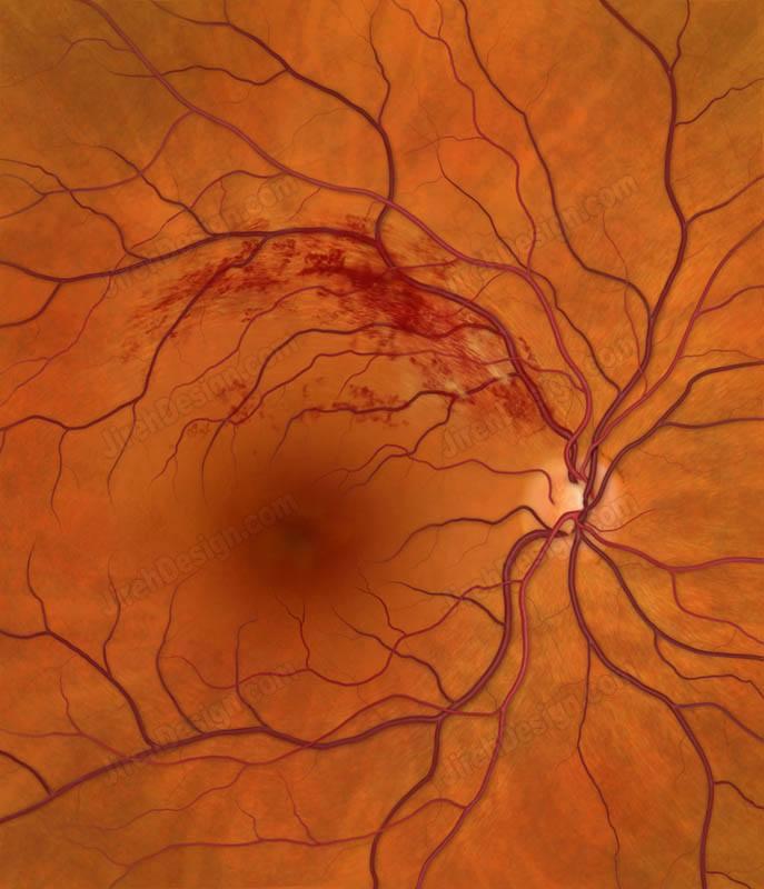 branch retinal vein occlusion brvo