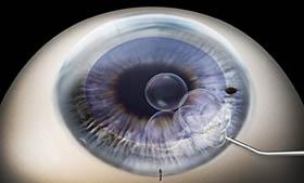 DMEK corneal transplant surgery