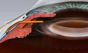 Glaucoma tube shunt procedure