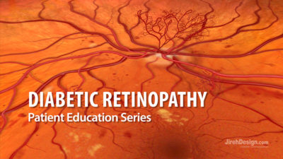 Diabetic retinopathy educational video animation