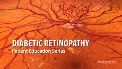 Diabetic retinopathy educational video animation