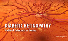 Diabetic retinopathy animation