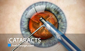 What is a cataract? A descriptive video animation describing cataracts.