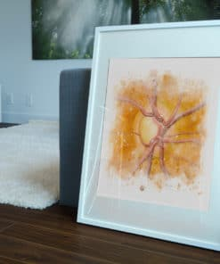 Glaucoma Nerve Watercolor framed floor