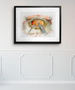 Cataract surgery art on wall eye doctor gift