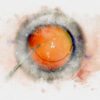 Cataract IOL surgery watercolor style print